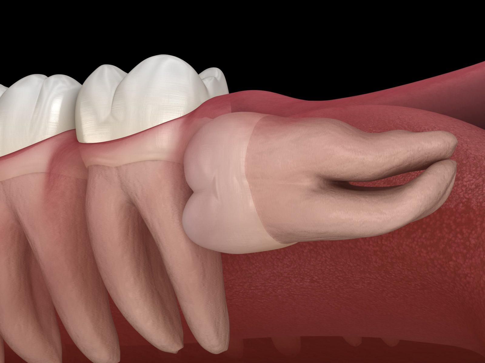 tooth growing sideways
