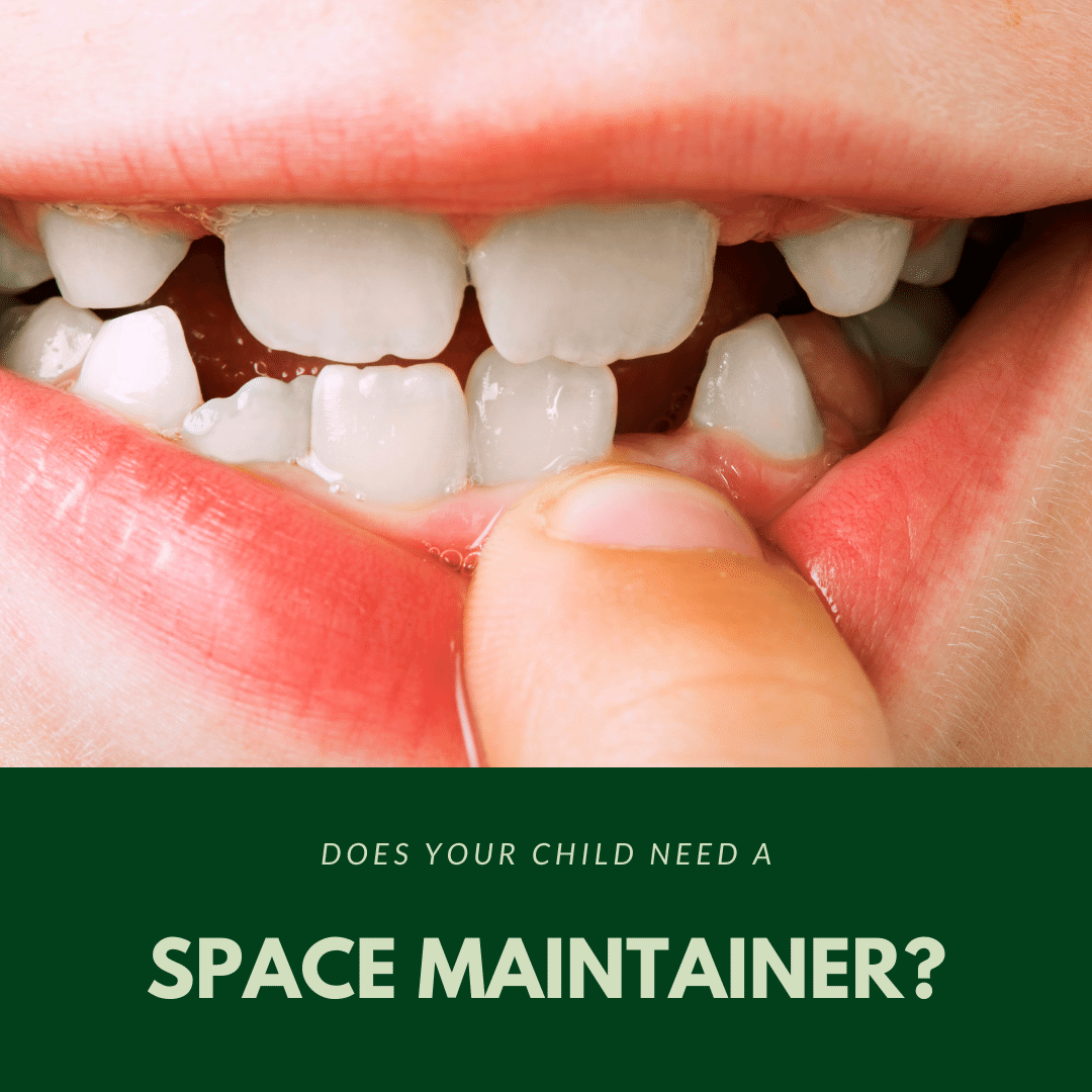 Does Your Child Need A space maintainer