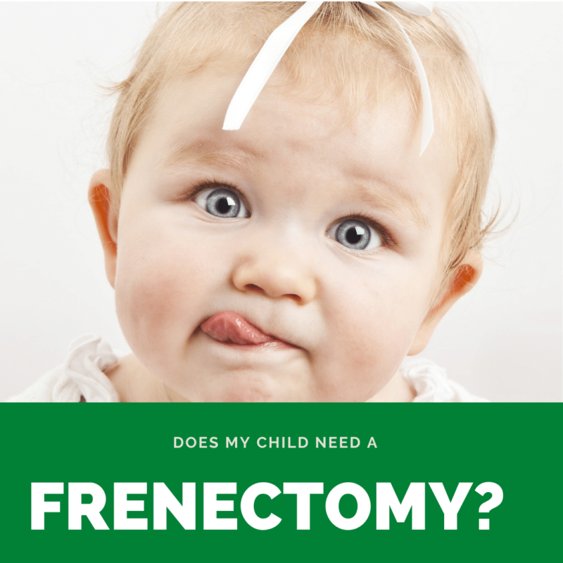 Does my child need a frenectomy