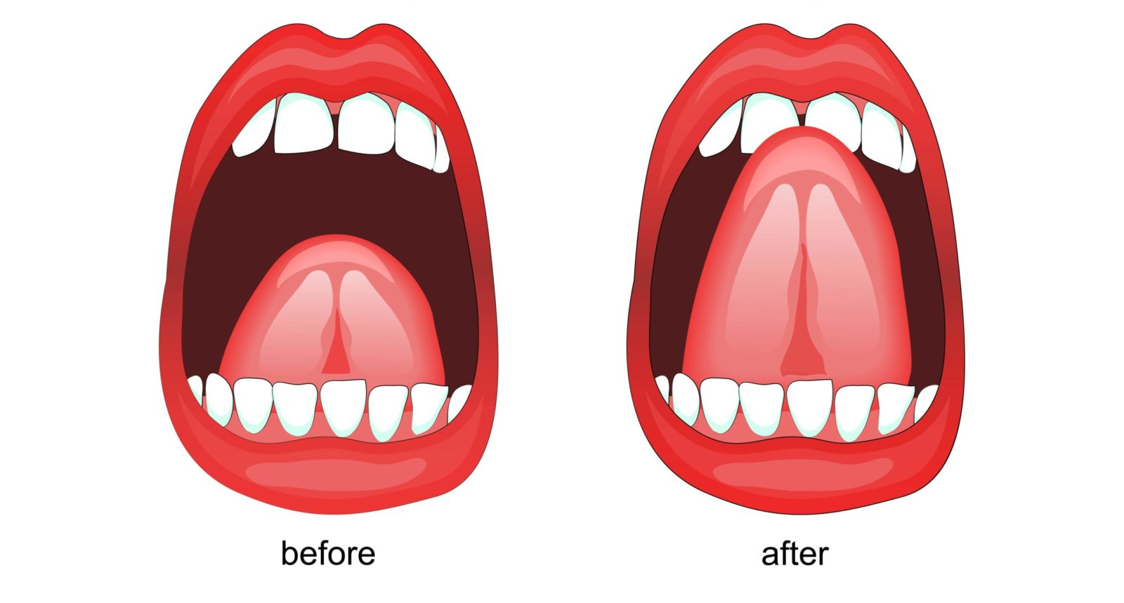 before and after frenectomy