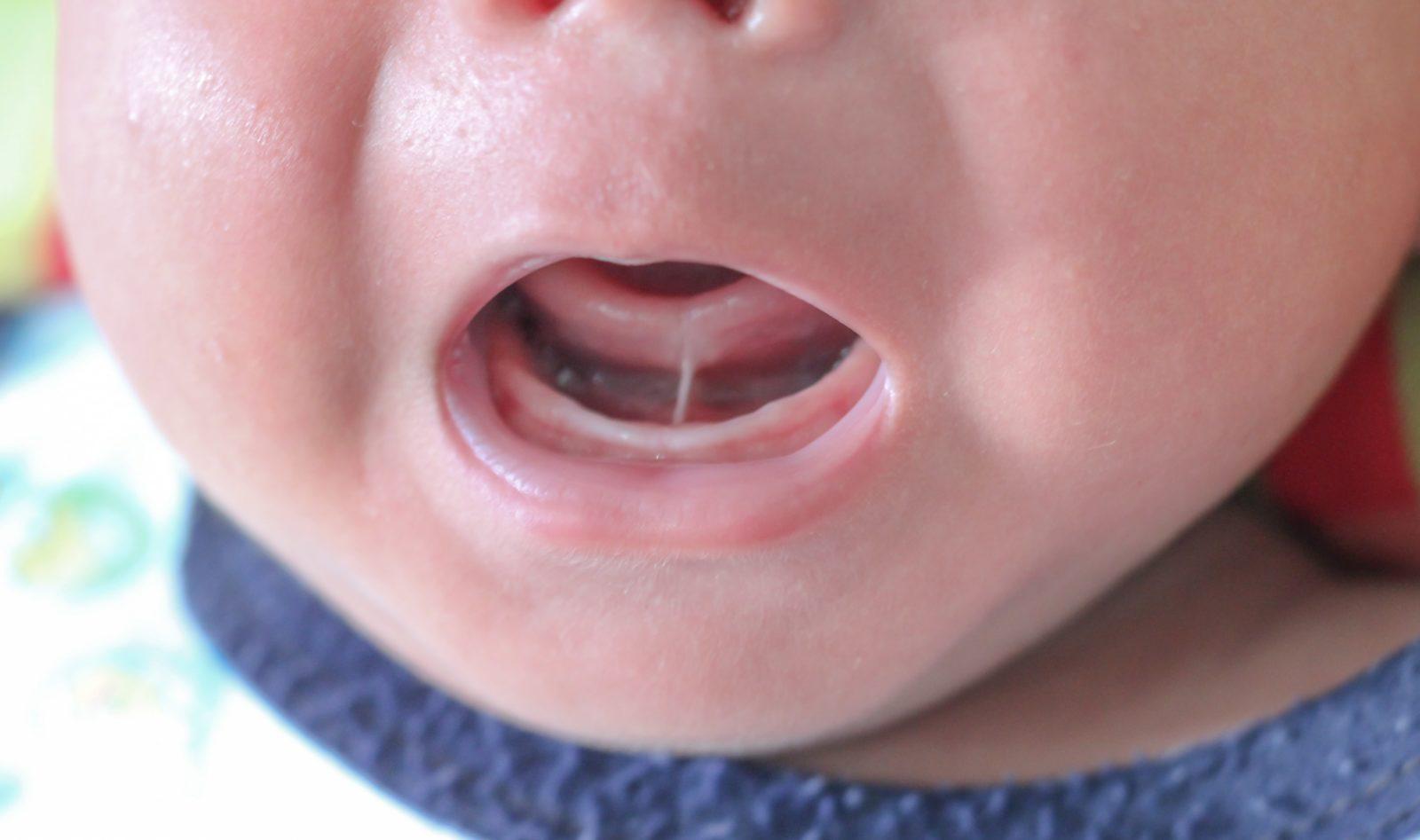 newborn with tongue tie
