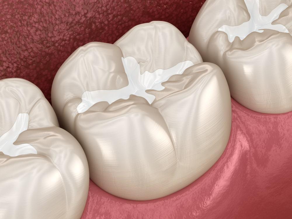 dental sealant shown on molar