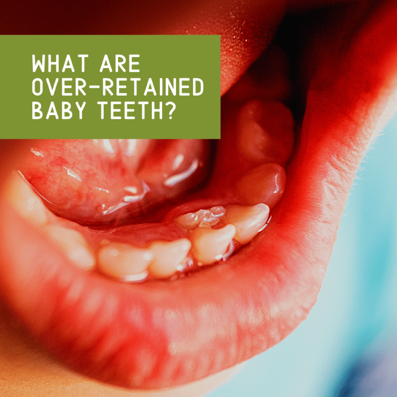 What are over-retained baby teeth_