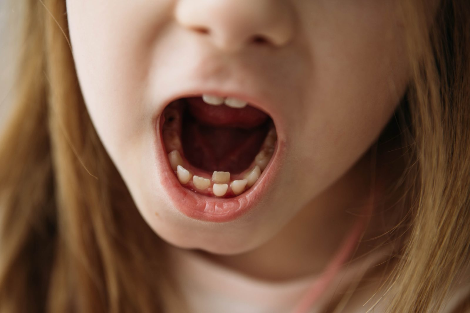 young girl with over-retained baby tooth