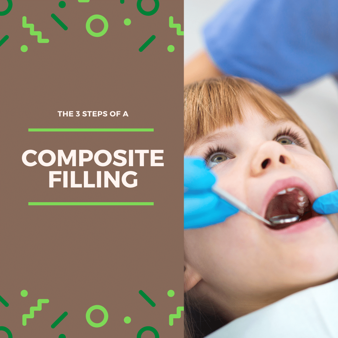 The 3 steps of a composite filling