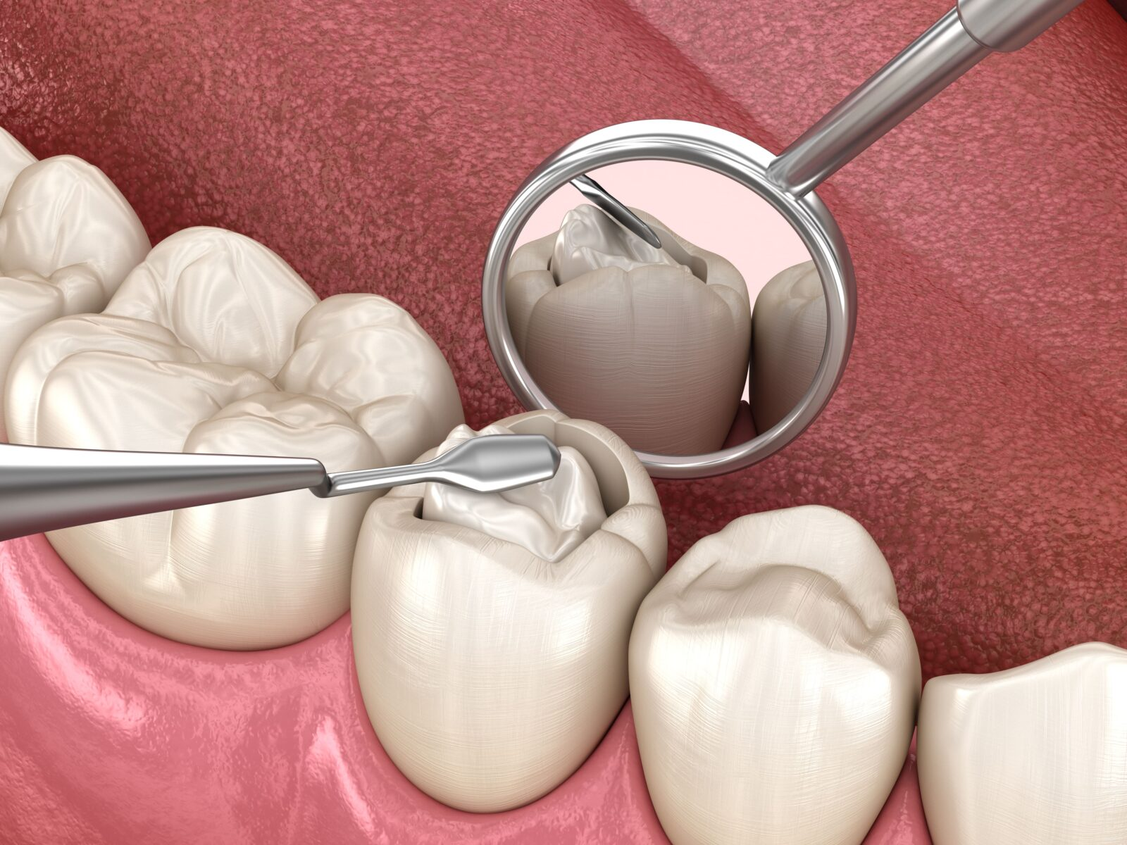 composite being placed in a dental cavity